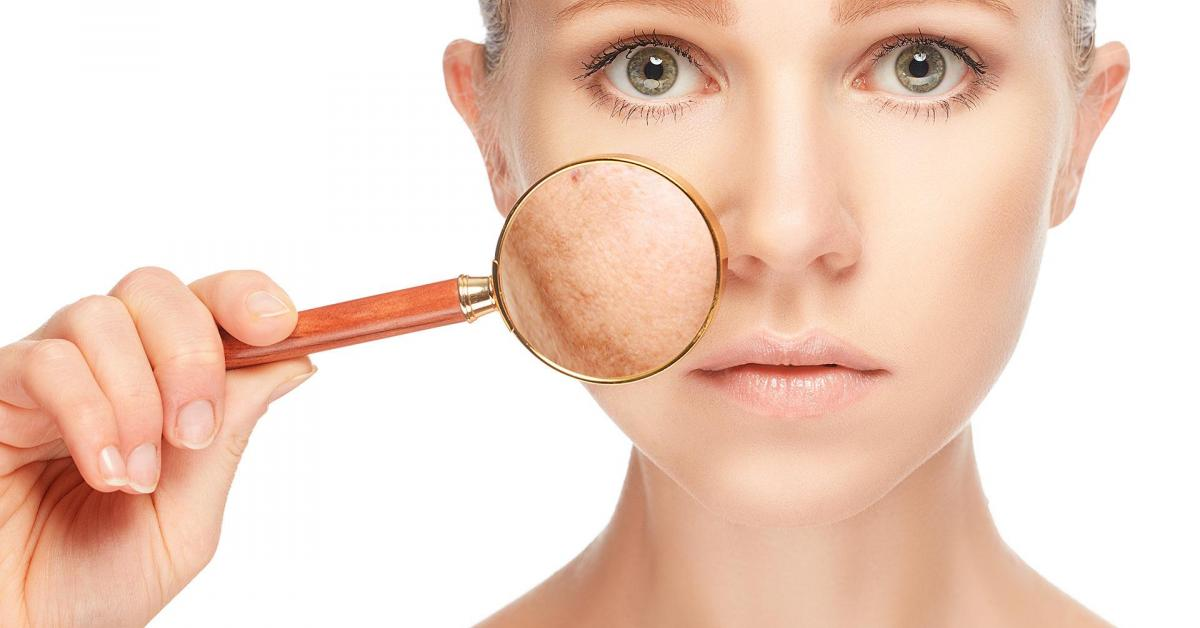 Դեմքի  պիգմենտային հետքերը  կանհետանան, եթե փորձեք այս միջոցը