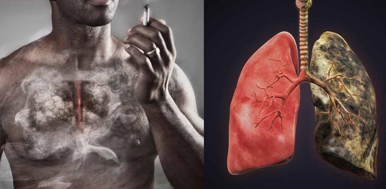 Լավագույն մթերքը, որի միջոցով հնարավոր է լիարժեքորեն մաքրել թոքերը