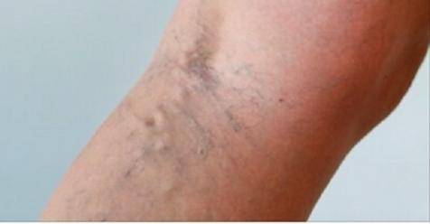 Эфирное масло, которое лечит варикозные вены, боль в мышцах, прыщи и многое другое