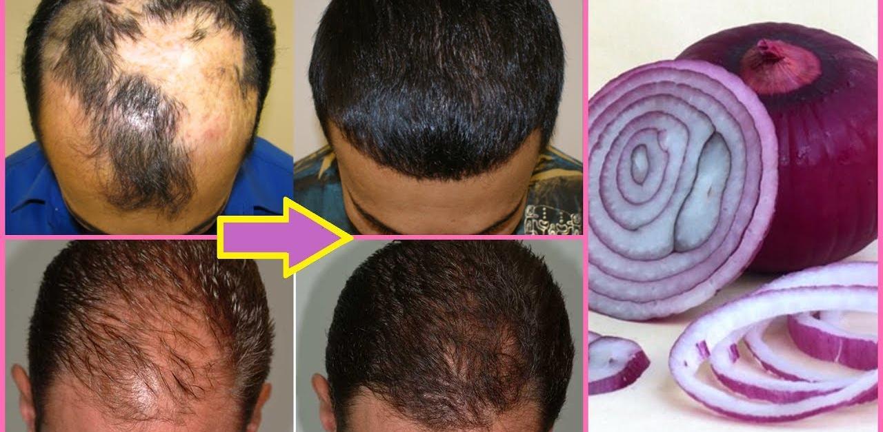 Սոխը կվերացնի մազաթափությունը և թափված մազերը կվերականգնվեն