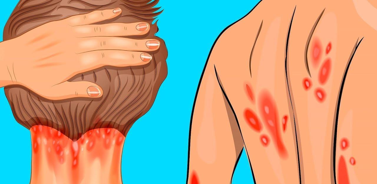 10 նախանշան, որոնք զգուշացնում են, որ ձեր օրգանիզմում կա վիտամին Դ-ի պակասություն