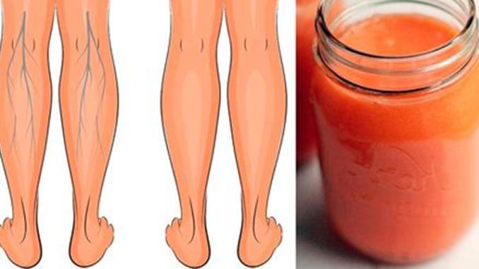 Эти соки эффективно укрепляют вены, улучшают кровообращение в ногах, и устраняют отёки!