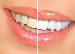 Այս բնական միջոցը կօգնի սպիտակեցնել ատամները, արդյունքը իրոք կզարմացնի