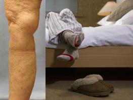 Вы чувствуете боль в ногах ночью или когда лежите в постели  У вас может быть синдром беспокойных ног  Вот, что нужно сделать