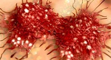 Ученые доказали, что негатив буквально заставляет рак расти внутри тела