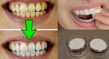 Гарантированное отбеливание зубов менее чем за 2 минуты! Очень эффективно!