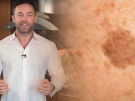 Այս մարդը մաշկաբան է և նա առաջարկում է շատ պարզ ու արդյունավետ միջոց, որը կօգնի ընդմիշտ ազատվել մաշկի շագանակագույն հետքերից