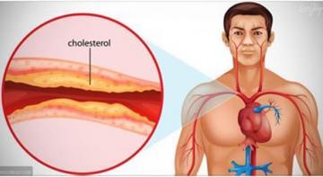 Вот, что вам нужно знать о вашем холестерине!
