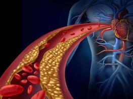 Проверенное средство для очищения артерий и понижения холестерина