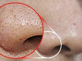 Շատ պարզ միջոցներ, որոնք կօգնեն ազատվել դեմքի սև կետիկներից արագ և անցավ եղանակով