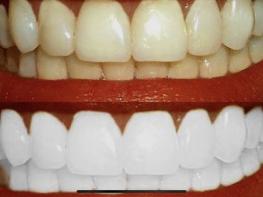 Ինչպես տնային պայմաններում սպիտակեցնել ատամները. Շատ պարզ և մատչելի տարբերակ