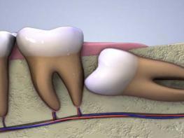 Китайская медицина рассказывает, почему нам нужны наши зубы мудрости