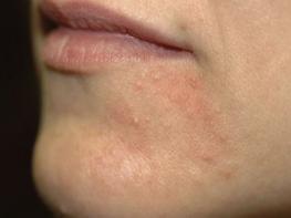 5 народных средств при дерматите