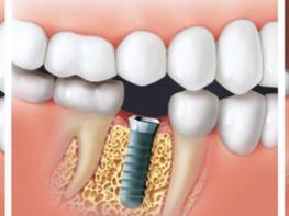 Սենսացիոն բացահայտում ինչպես աճեցնել նոր ատամներ ընդամենը 9 շաբաթում