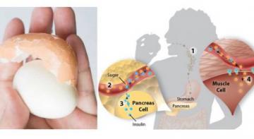 Нет более естественного способа контролировать сахар в крови: все, что он принимает, — это одно вареное яйцо