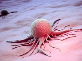 Ուրախալի լուր, վերջապես  հայտաբերվել է քաղցեղի բուժման միջոցը, ի դեպ, այն հասանելի բոլորին